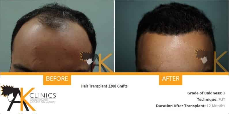 india-strip-hair-transplant-result-4