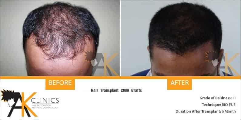 new-delhi-bio-fue-hair-transplant-13
