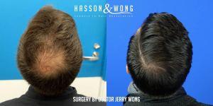 Dr Wong FUE hair transplant
