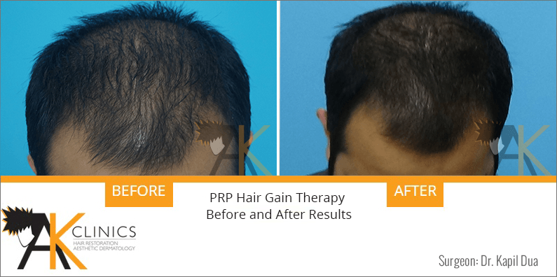 prp-hair-therapy-results-2