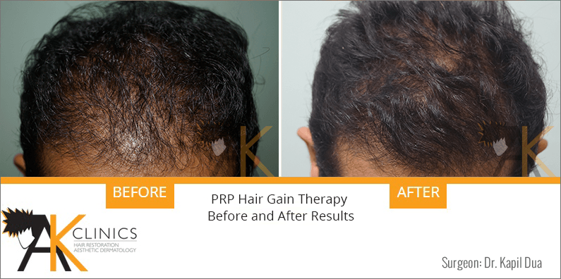 prp-hair-therapy-results-3