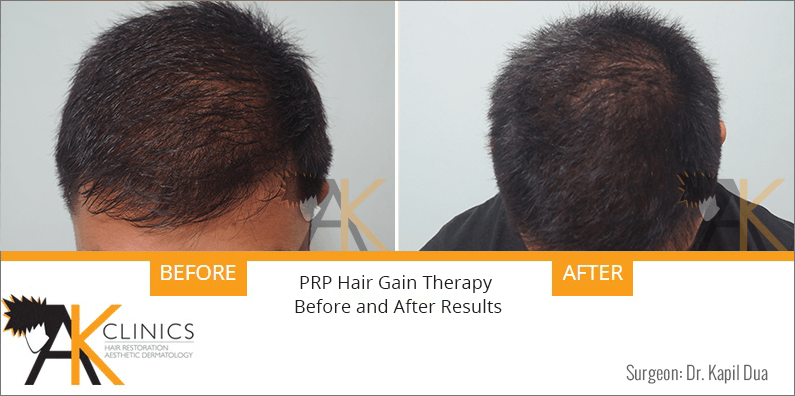 prp-hair-therapy-results-6