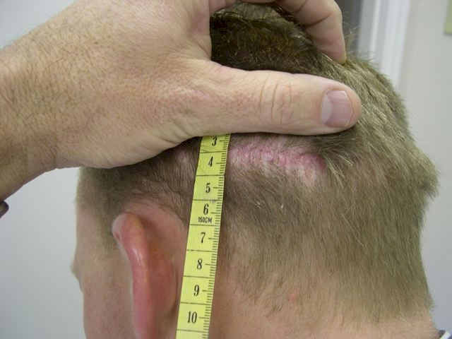 toronto hair transplant scar repair using botox