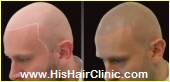 His Hair Clinic Scalp Micro Pigmentation