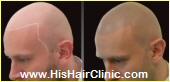 His Hair Clinic Scalp Micro Pigmentation