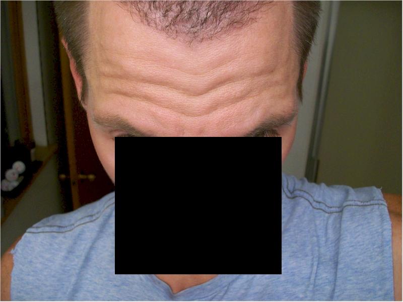 HairSite Hair Transplant Charity Repair Worldwide