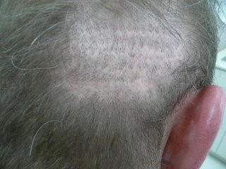 hair transplant donor scar repair with Dr. Jones
