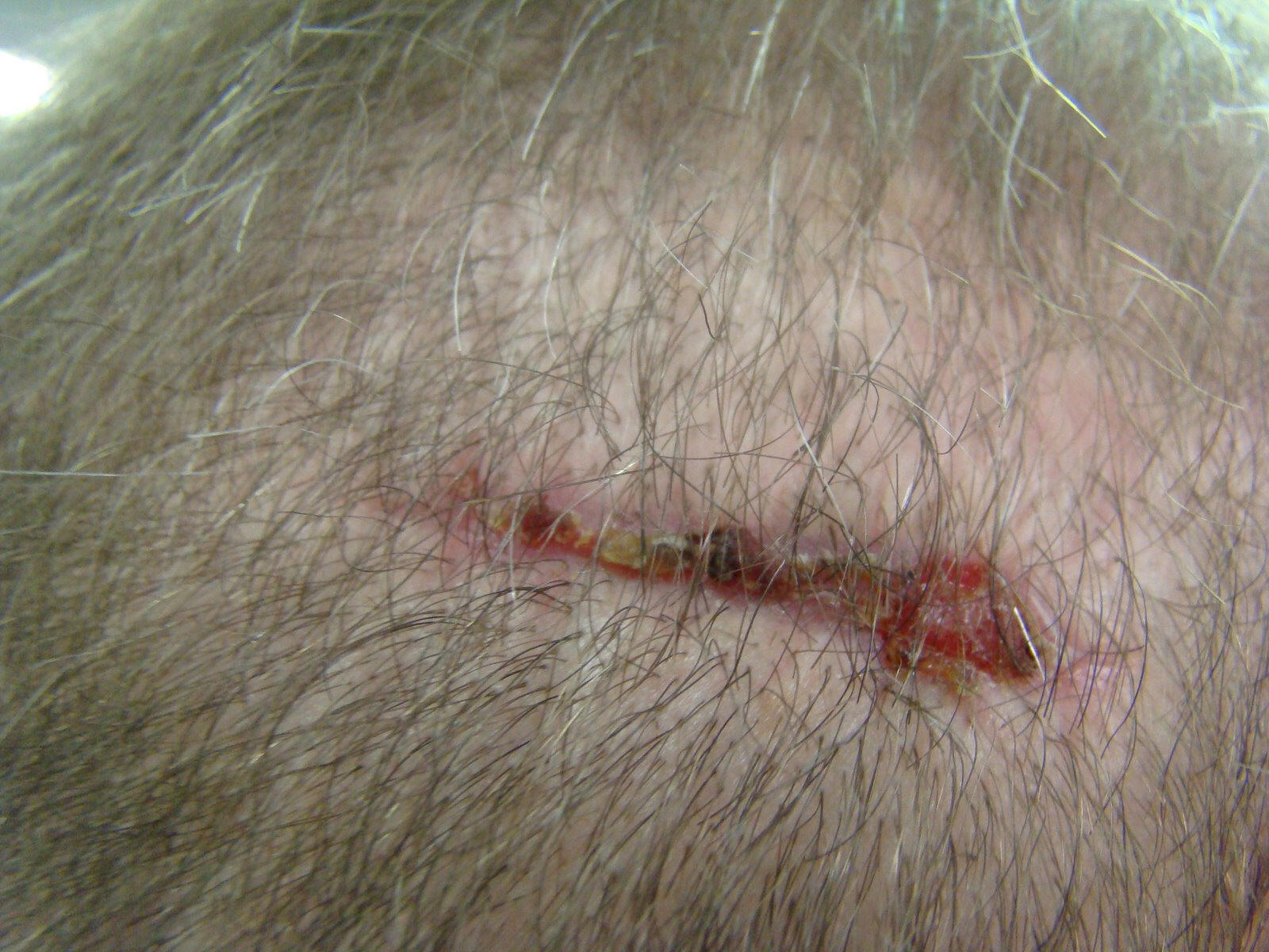 Acell hair transplant scar trial repair photo