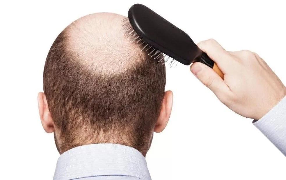 perdida del cabello