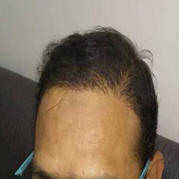 hair-transplant-post-01