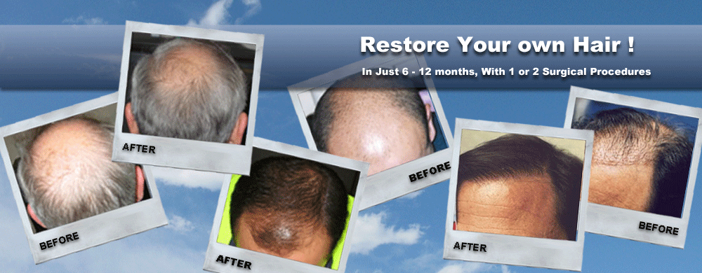 Banner of hair transplant results over a year