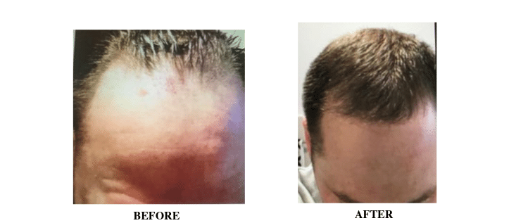 Hair Transplant 3 Pic (1)