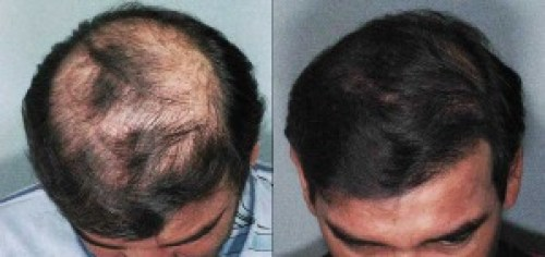Advanced Hair Restoration restores hair for men and women!