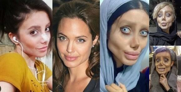 Pour ressembler à Angelina Jolie Sahar Tabar s'est faite opérer 50 fois.