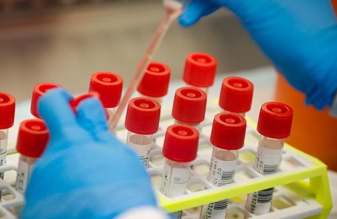 Coronavirus : 38 nouveaux cas confirmés, 6371 au total