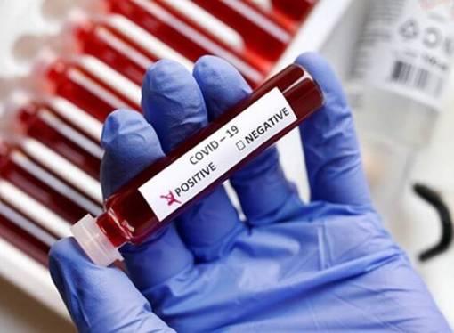 Covid-19 : le MSPP confirme 67 nouveaux cas