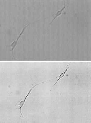 stem-cell-1