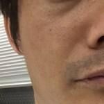 顔の白斑治療日記8【眼の下や口の横は問題ないレベルに】