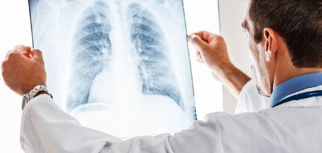 الأشعة السينيّة X-Ray، وماهي الحالات التي تتطلّب التصوير بالأشعة السينية