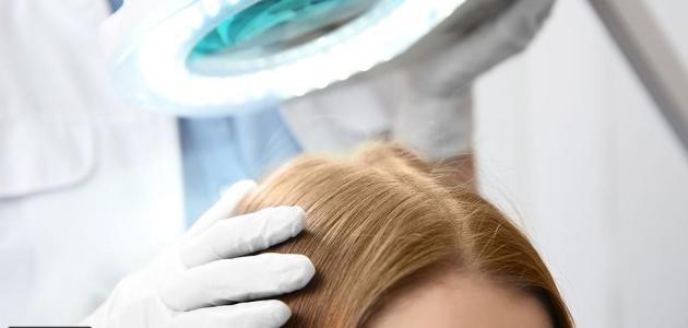 جفاف فروة الرأس والشعر أبرز أسبابها وكيفية علاجها بالوصفات الطبيعية