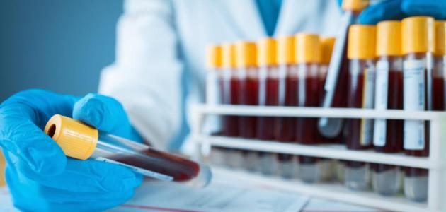 فرط فوسفور الدم Hyperphosphatemia