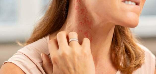 صدمة الحساسية Allergic Reaction .. حالة صحية مهددة للحياة لنتعرف عليها!