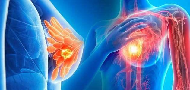 أقراص فيرزينيو (Verzenio) وعلاج سرطان الثدي بالدواء … أبرز المعلومات والنقاط