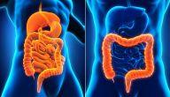 التهاب القولون وأعراضه وكيفية العلاج
