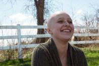 baldhead 3