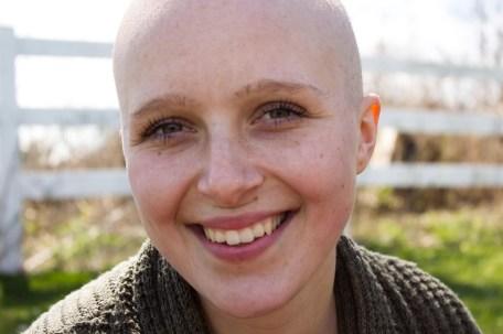 baldhead 4