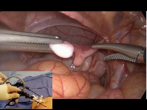 laparoskopik testis