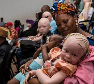 © Albinos Mali Albinisme en afrique MINUSMA Harandane Dicko