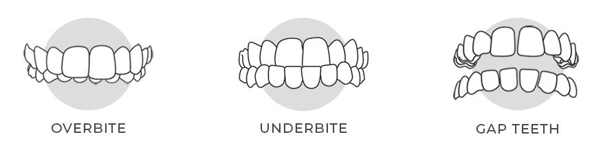 https://i2.wp.com/hampsteaddental.com.au/wp-content/uploads/Invisalign-Teeths-Image-for-web-gre3y.jpg?fit=877%2C219&ssl=1