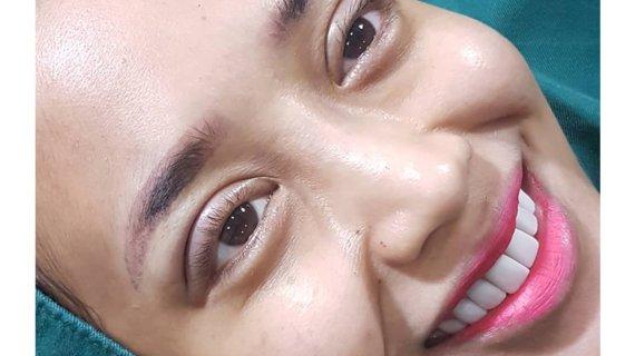 Wajah menjadi lebih cantik dengan sulam lipatan mata
