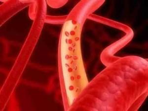 virtual arterial flow (no surrounding cells)