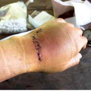hand therapy for complex hand trauma