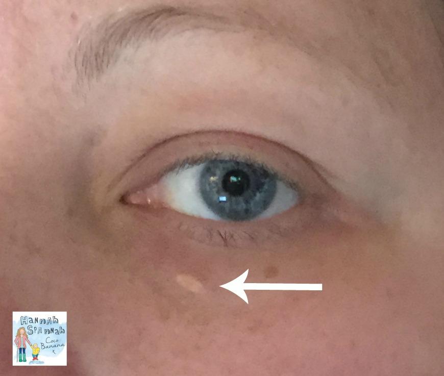 cholesterol under eye