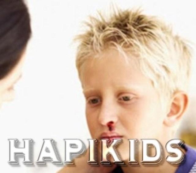 Gemofilija u detej (5)