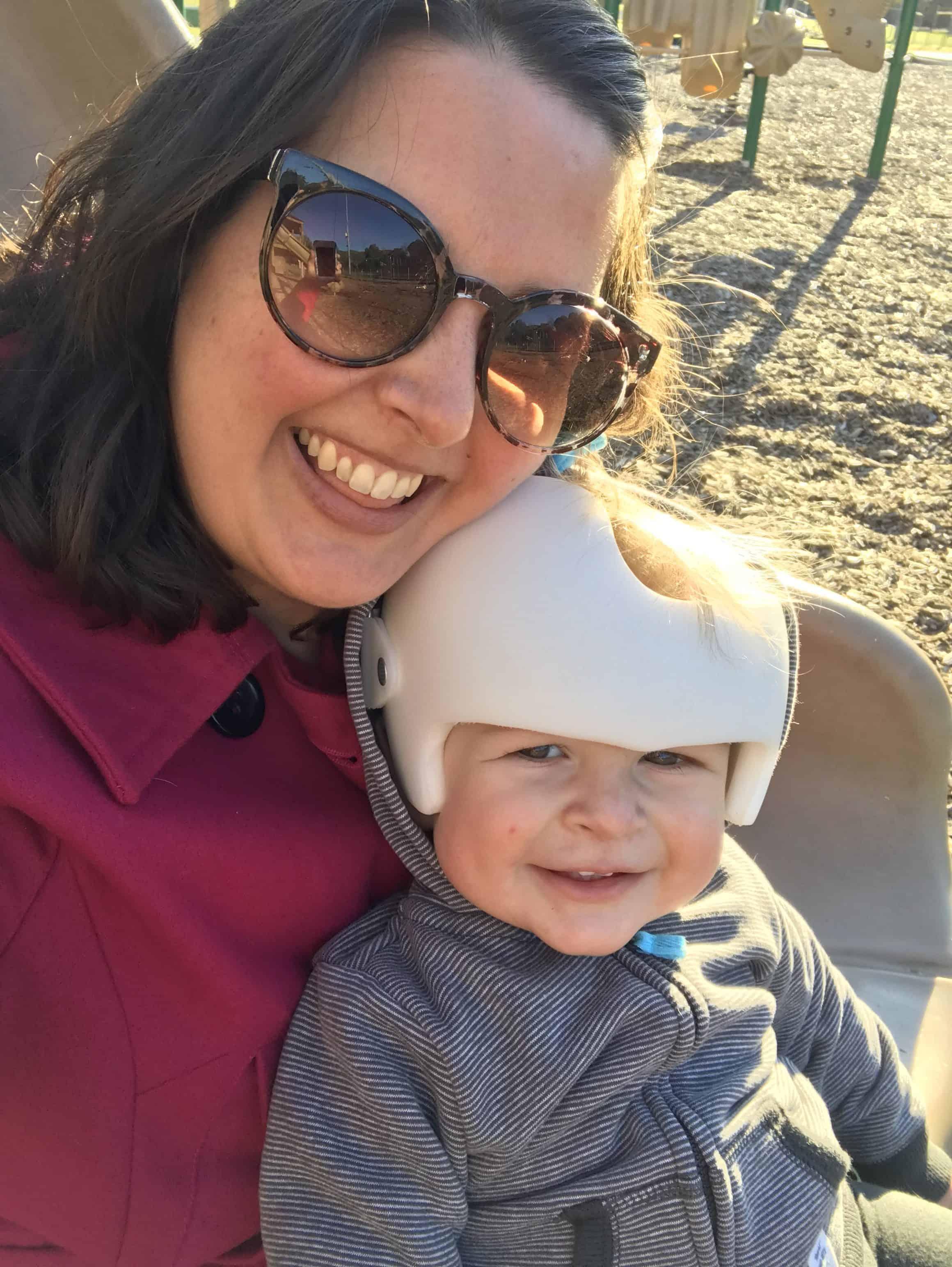 Why My Baby Wears a Cranial Helmet