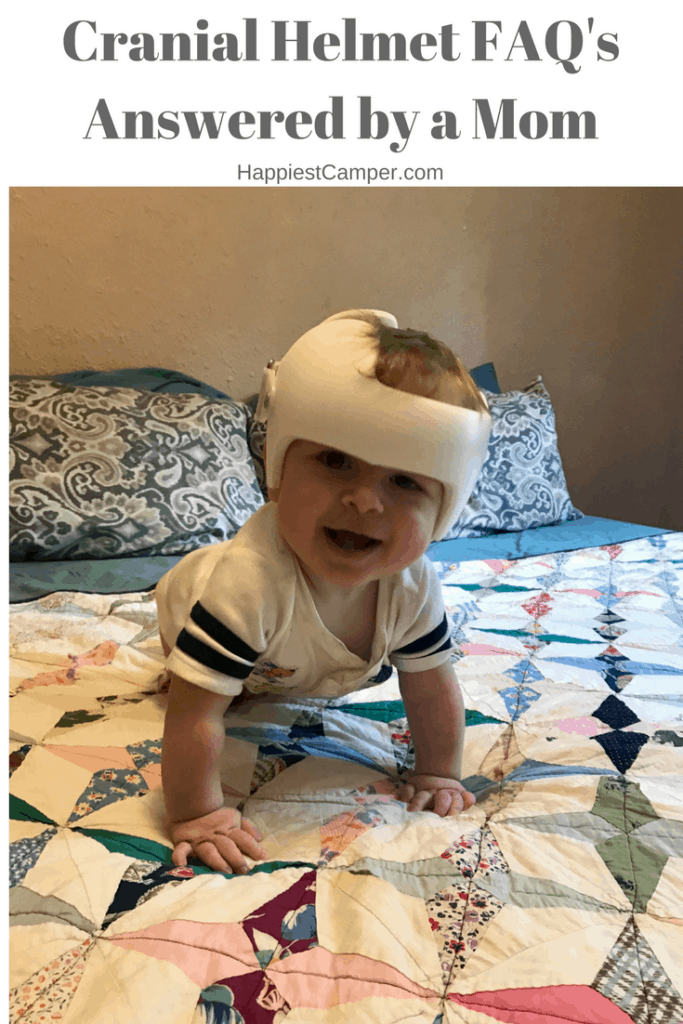 Cranial Helmet Questions Answered by Mom