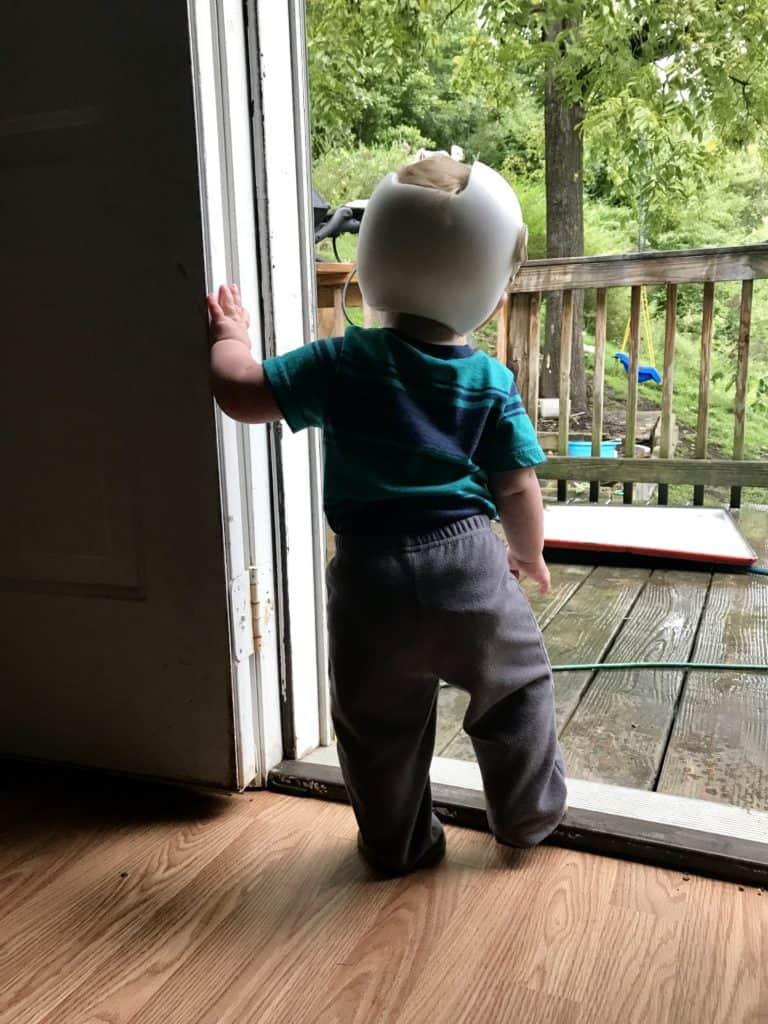 Cranial Helmet Baby Looking Outside