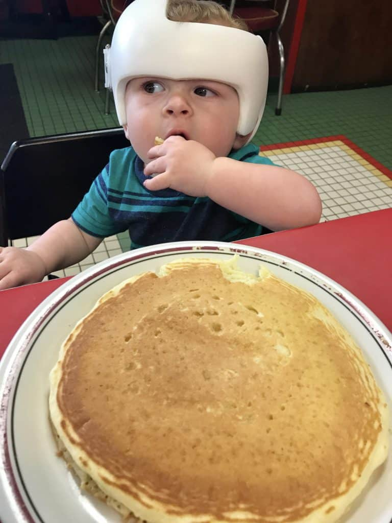 Cranial Helmet Baby Pancake