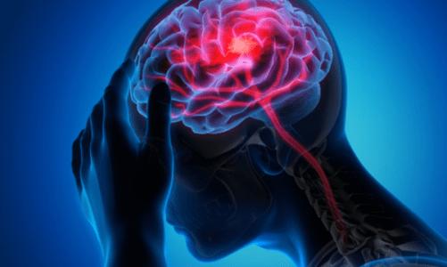 11 ранни признака на инсулт, познаването на които ще ви спаси живота