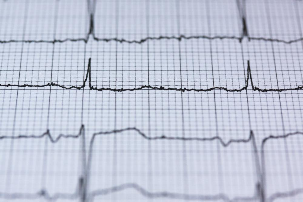 Lower Heart Rate a Benefit of HIIT Workout