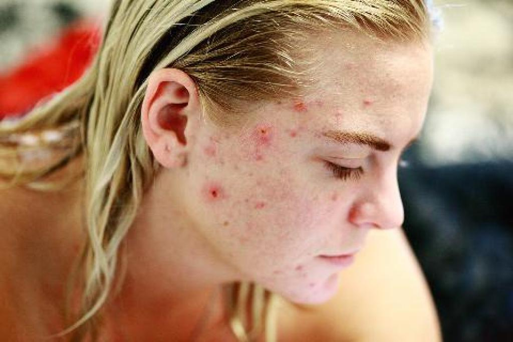 cystické akné