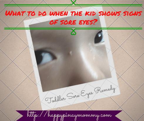 Breastmilk as Sore Eyes Remedy