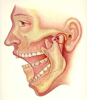 下顎關節運作方式