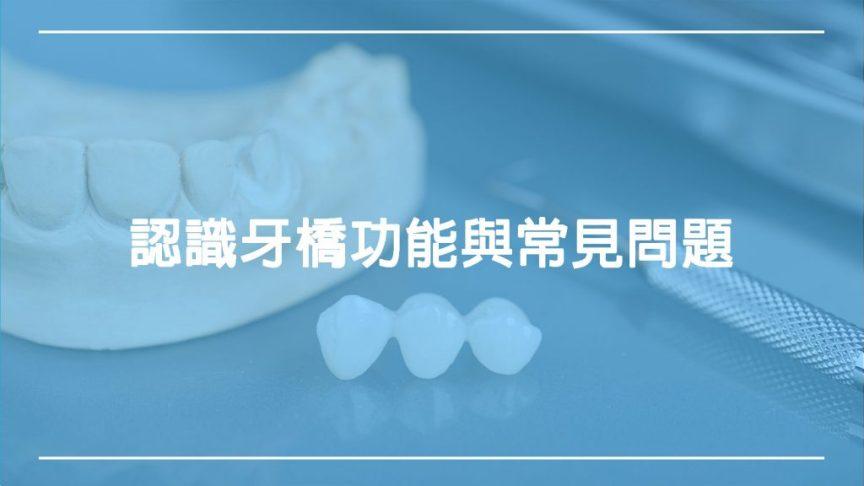 認識牙橋功能與常見問題