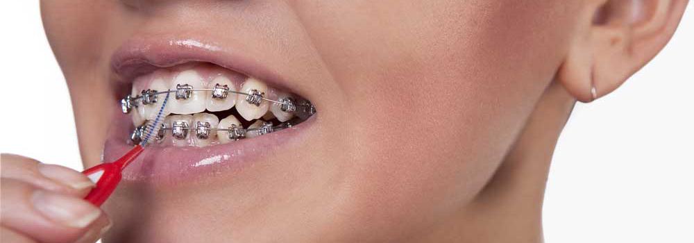 牙間刷使用牙套