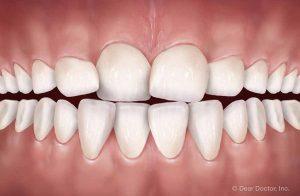 兒童牙齒擁擠狀態